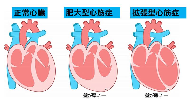 食事 心臓 肥大